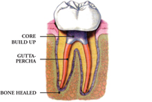 Root canal treatment specialist London